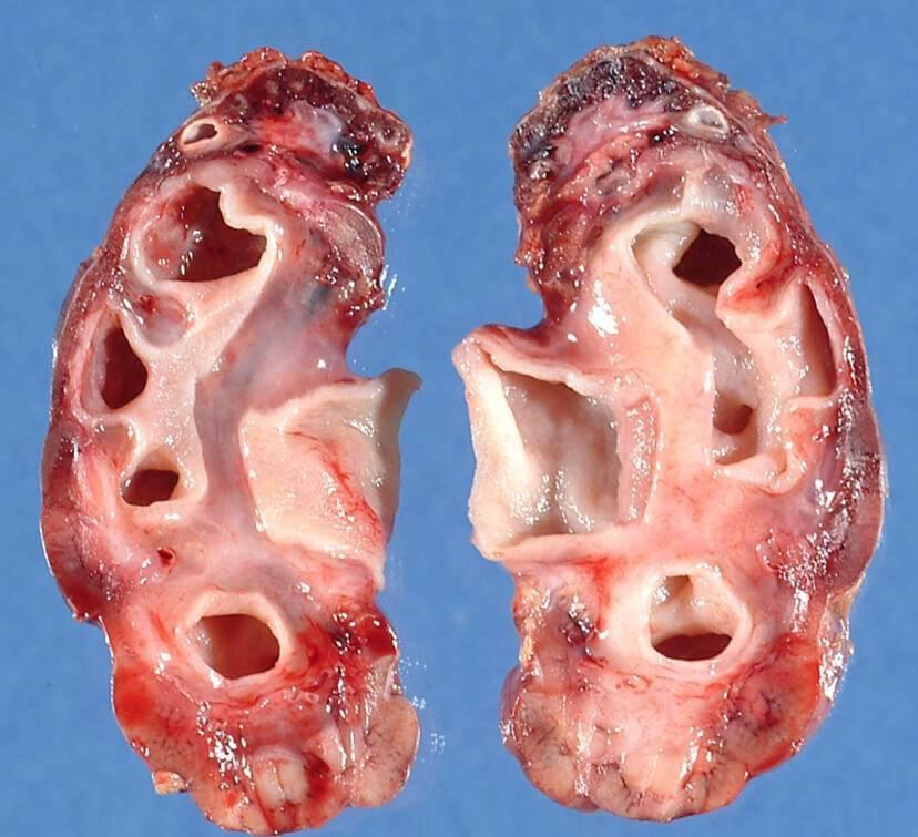 Можно ли родить при гипоплазии почки