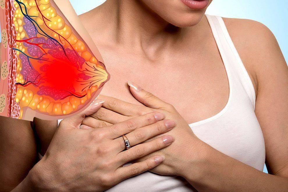 Застудила грудь: симптомы, осложнения, лечение, что делать при кормлении