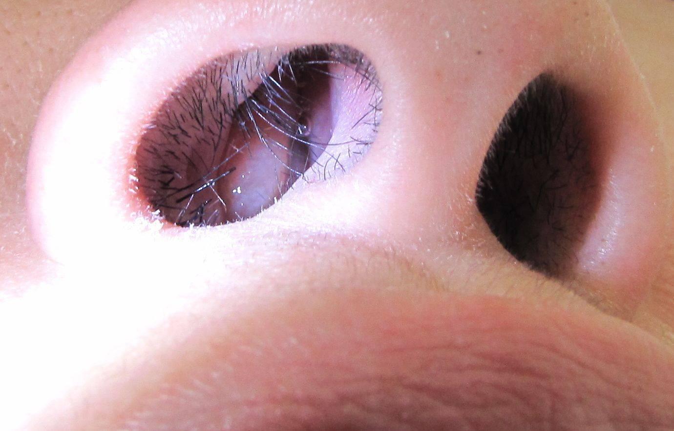 Полипы у ребенка симптомы лечение в носу - лечение