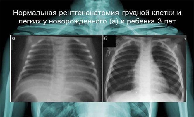 Что лучше мрт или компьютерная томография позвоночника, рентген, узи