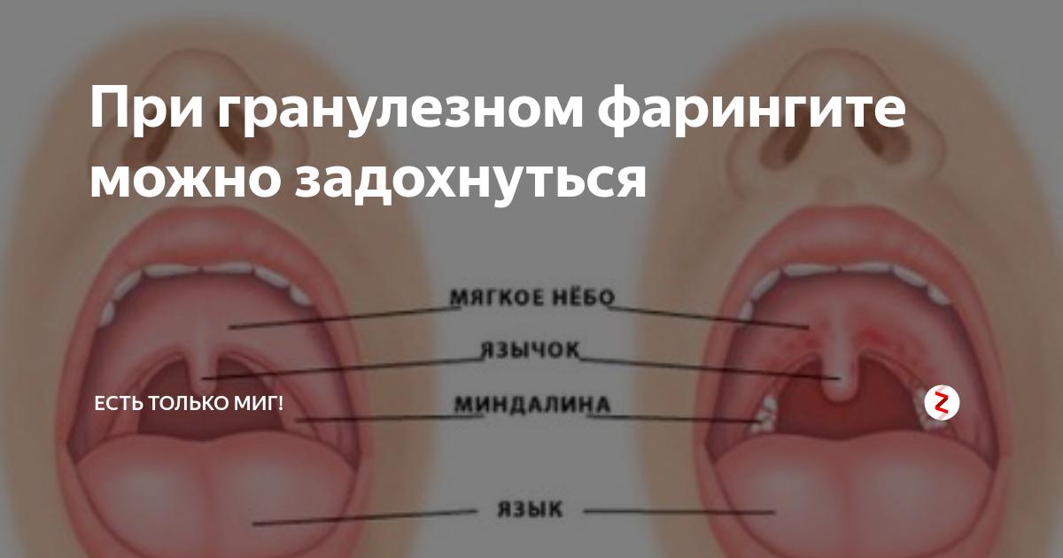 У ребенка горло красное рыхлое: как распознать, чем лечить