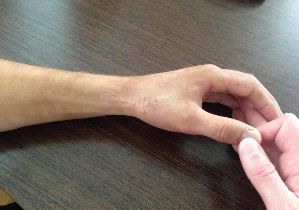 Перелом руки со смещением лечение у ребенка