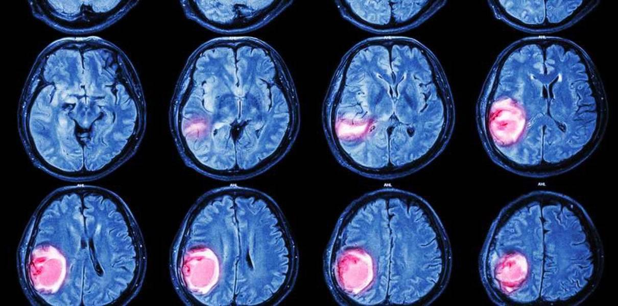 Нейробластома забрюшинного пространства у детей и взрослых