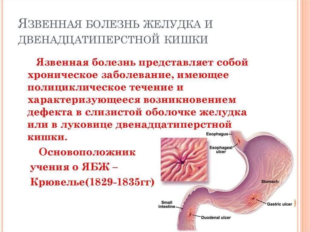 Язва двенадцатиперстной кишки: симптомы и лечение, диета