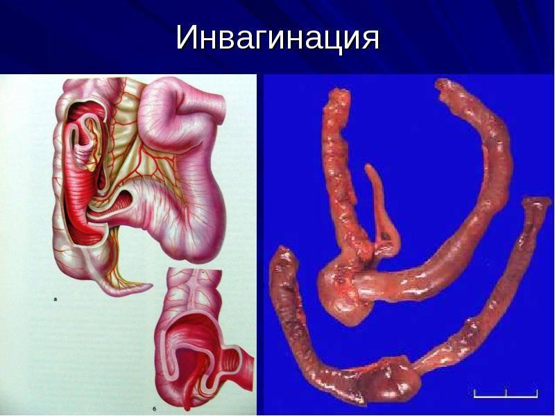 Симптомы и лечение кишечной непроходимости у новорожденных и детей до и после года: что это такое и нужна ли операция? - rosmedportal.ru