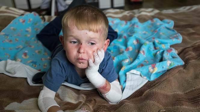 Дети-бабочки – когда ты чувствуешь боль всей кожей | православие и мир
