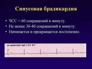 Патология «медленного» сердца у ребенка: рекомендации при брадикардии для родителей