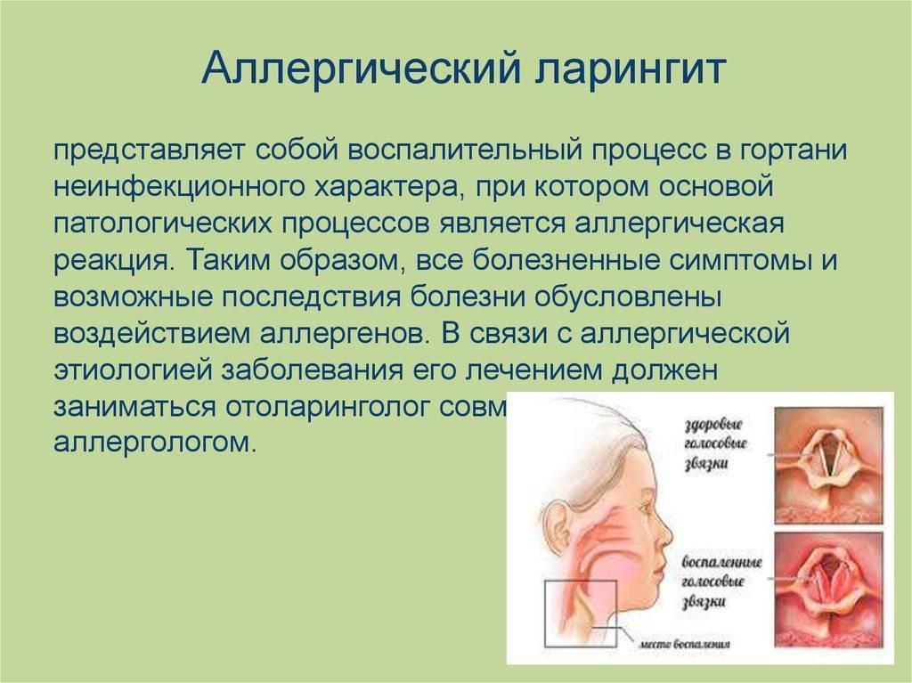 Ларингит - симптомы и лечение у детей