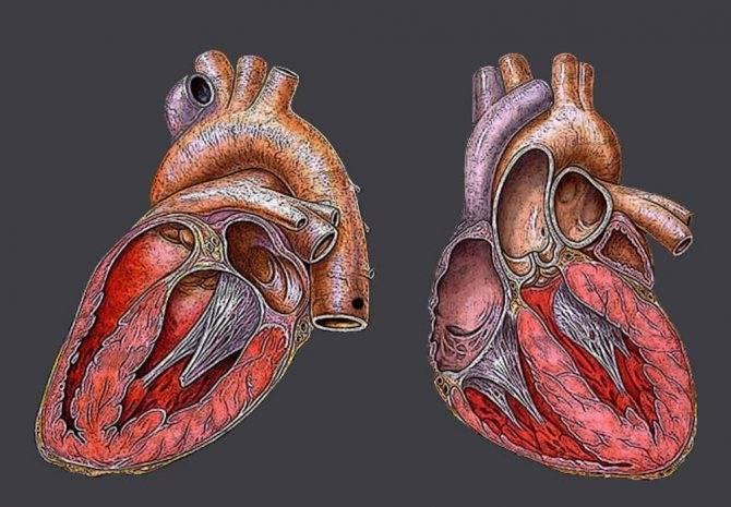 Аномальная хорда левого желудочка у детей - здоров.сердцем