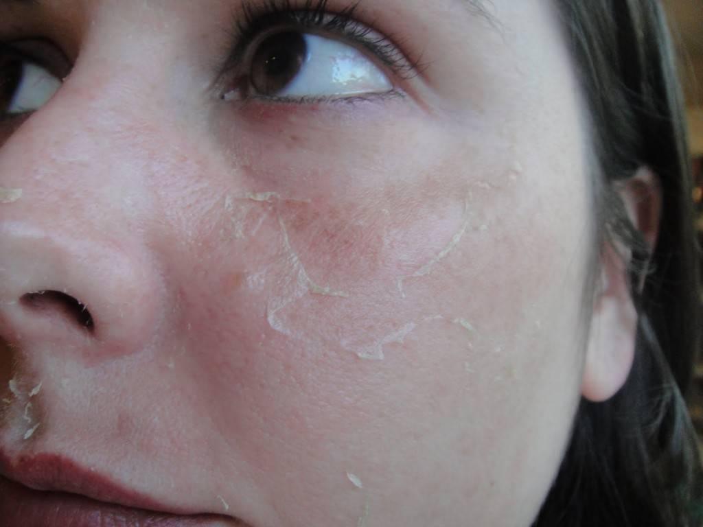Сухая кожа при беременности, причины шелушения и покраснения во время вынашивания ребенка