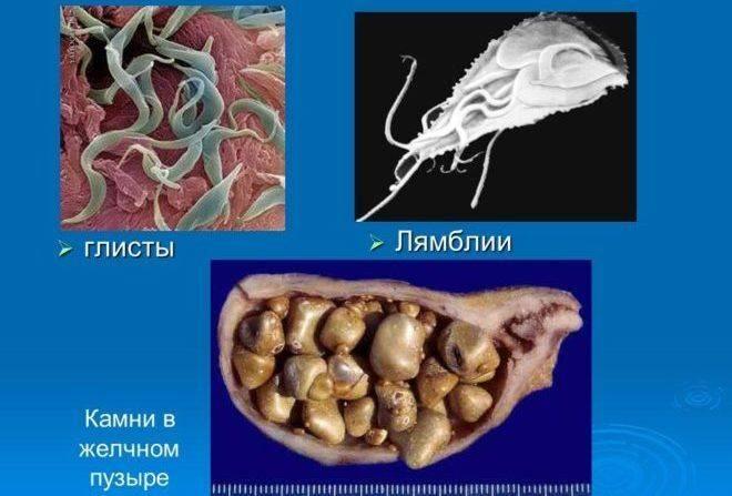 Лямблиоз у детей. симптомы и лечение народными средствами, препараты