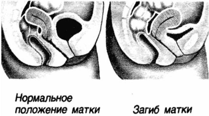 Что значит седловидная форма матки