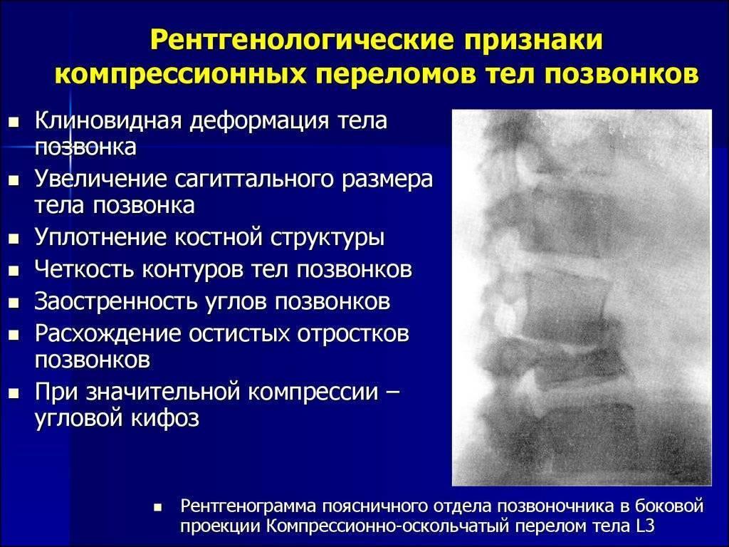 Восстановление после компрессионного перелома позвоночника у детей