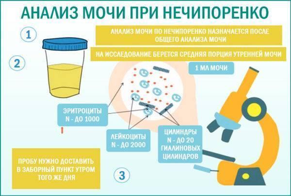 Как правильно сдавать анализ мочи при беременности с ватным тампоном