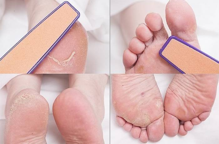 Сухой мозоль на пальце ноги у ребенка лечение