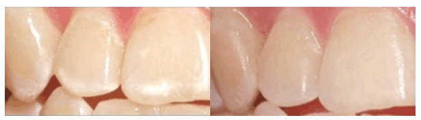 Насколько эффективно фторирование молочных зубов у детей – отзывы и цены