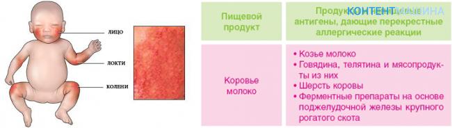 Аллергия на пылевого клеща: симптомы, лечение, методы профилактики