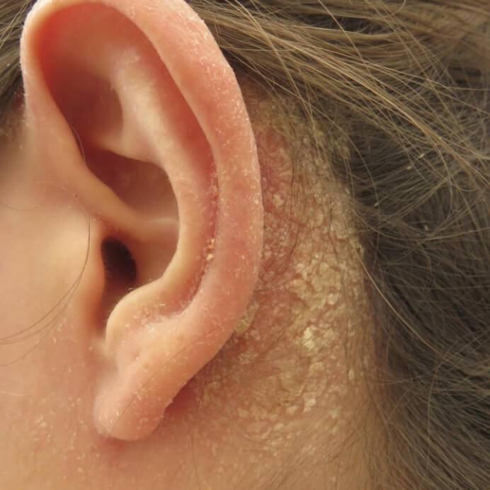 Причины возникновения у грудничка корочек за ушами - о болезнях