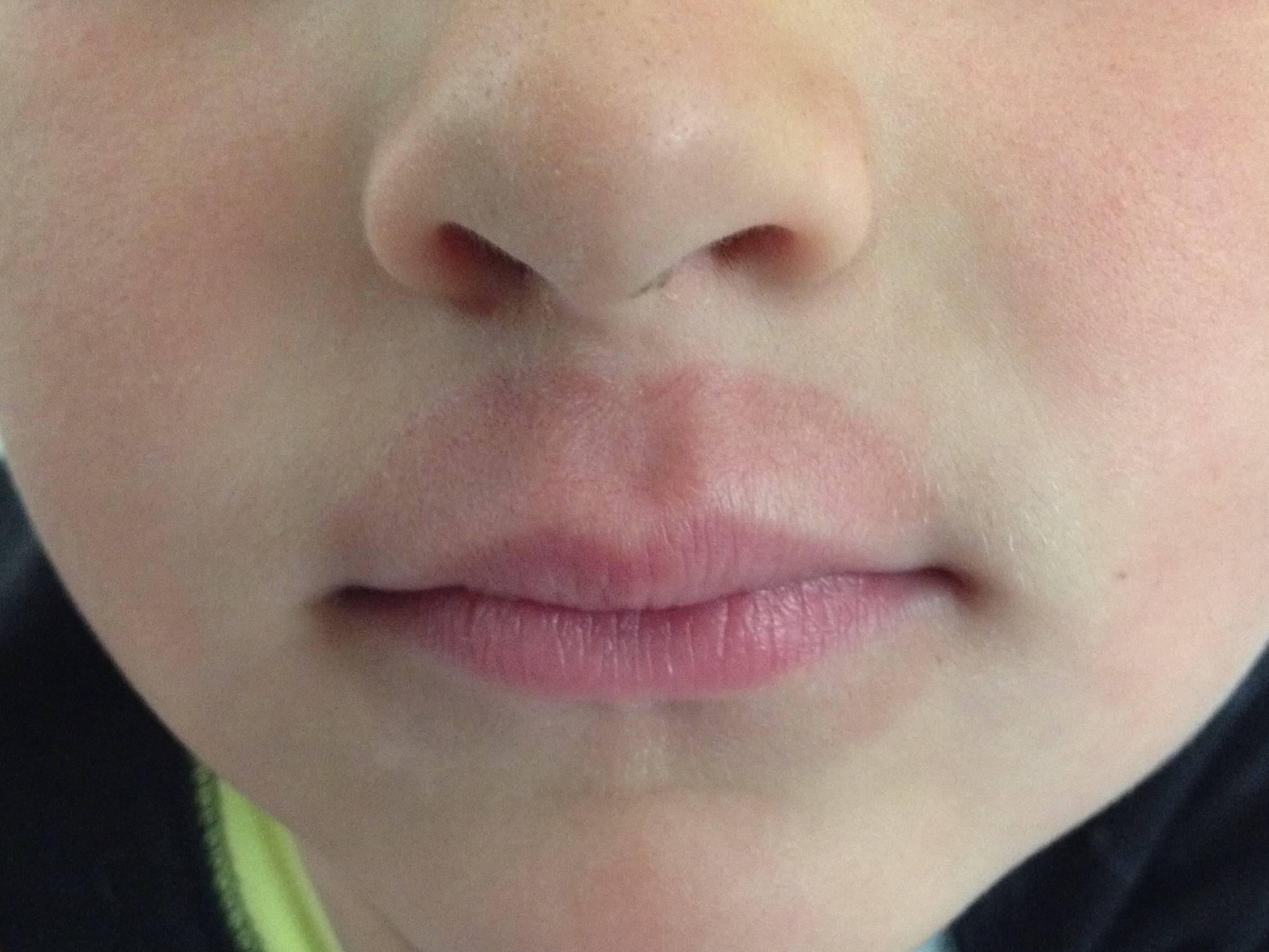 Опухла нижняя губа у ребенка что это может быть