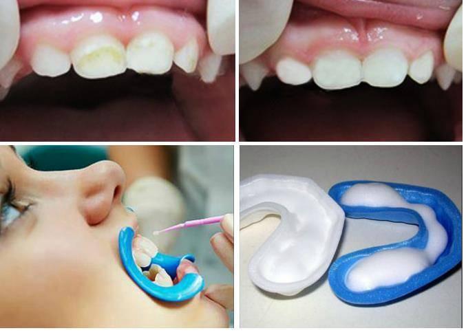 Что такое глубокое фторирование зубов и как проходит процедура?