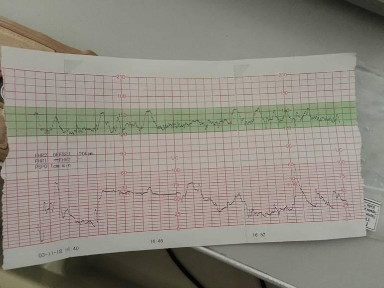 Как выглядят схватки на ктг: способы их определить, показывает ли их диагностика