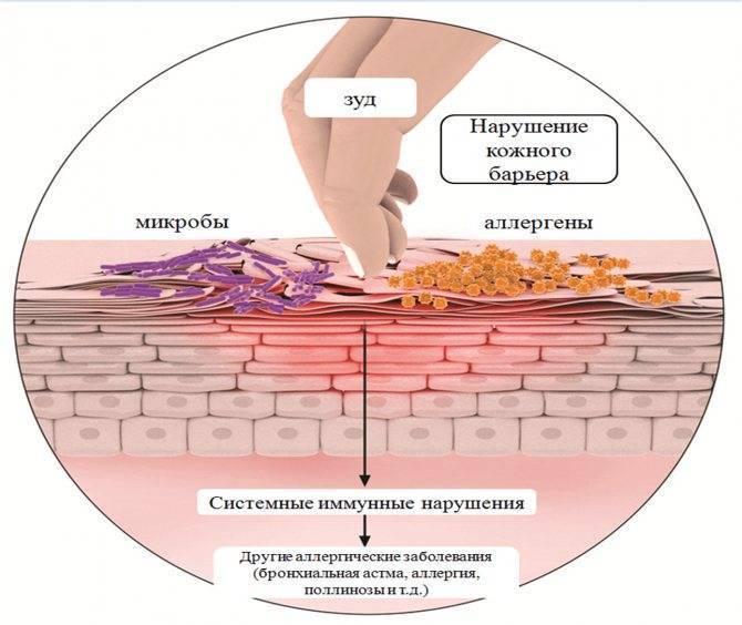 Атопический дерматит у детей до года: симптомы, лечение и мнение комаровского