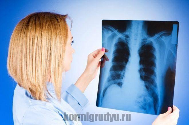 Рентген при грудном вскармливании: опасен ли для матери и ребенка