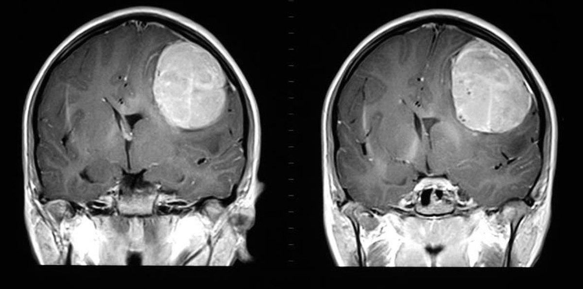 Глиома ствола мозга
