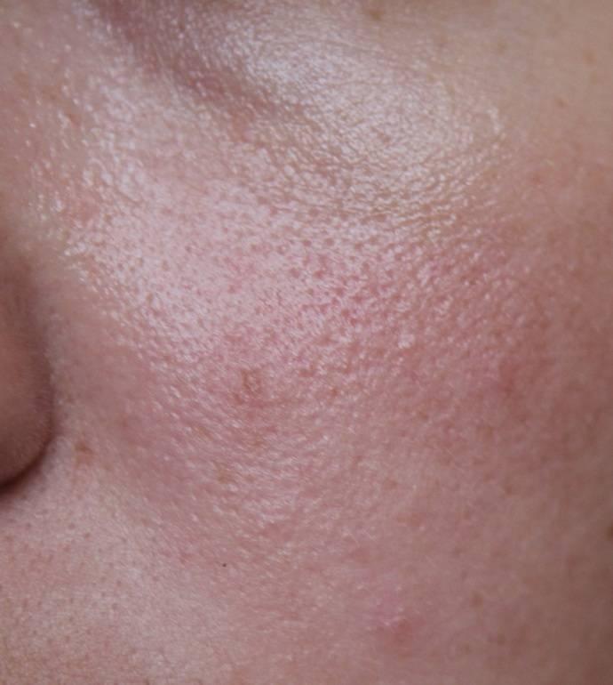 Пигментация при беременности на груди, на животе, на лице, на сосках как избавиться в домашних условиях