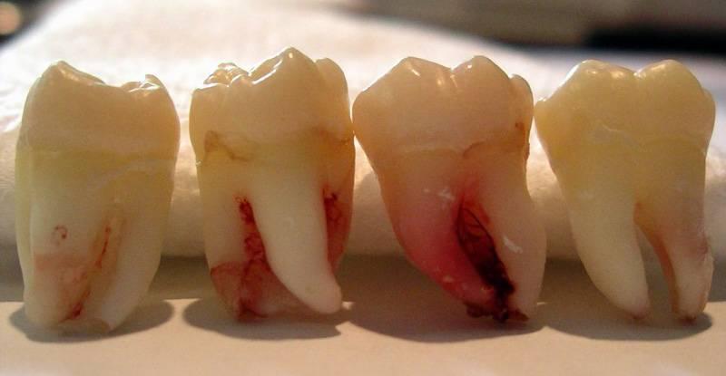 Можно ли удалять молочные зубы в 6 лет? | здоровье зубов