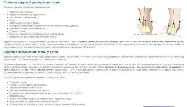 Варусная деформация стопы у детей: симптомы, лечение, фото   все о суставах и связках