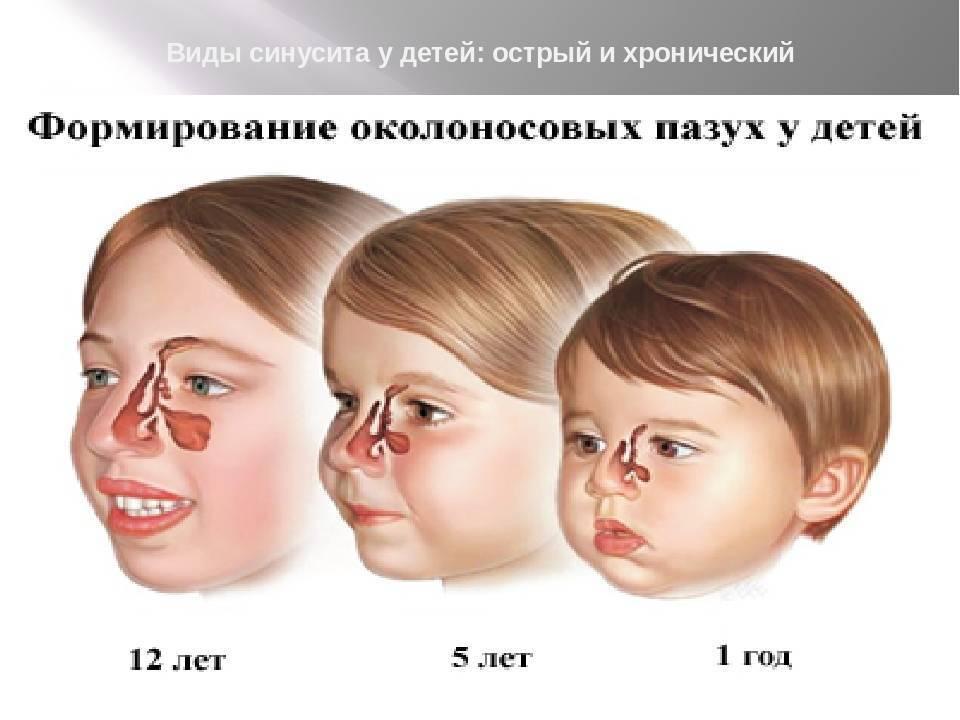 Синусит: симптомы и лечение у детей. как распознать?