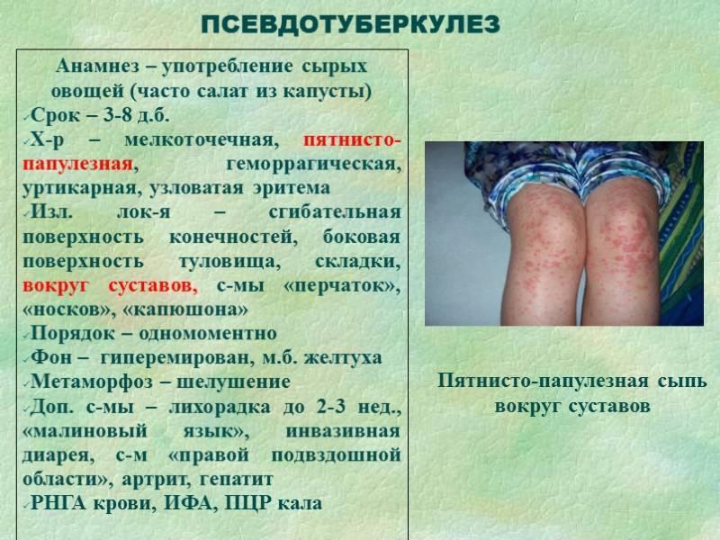 Псевдотуберкулез у детей и взрослых - симптомы, лечение, диагностика