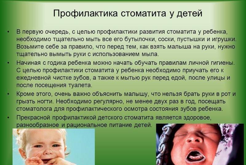 Герпетический стоматит у детей: лечение (местное, препаратами, народными средствами), формы, симптомы, причины, осложнения (острый, хронический)