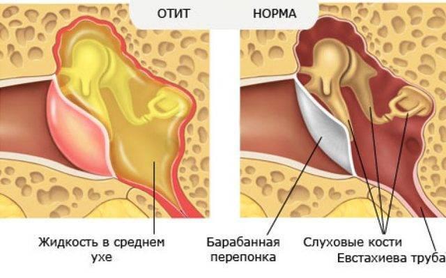 Экссудативный отит у ребенка, эффективное лечение экссудативного отита у детей