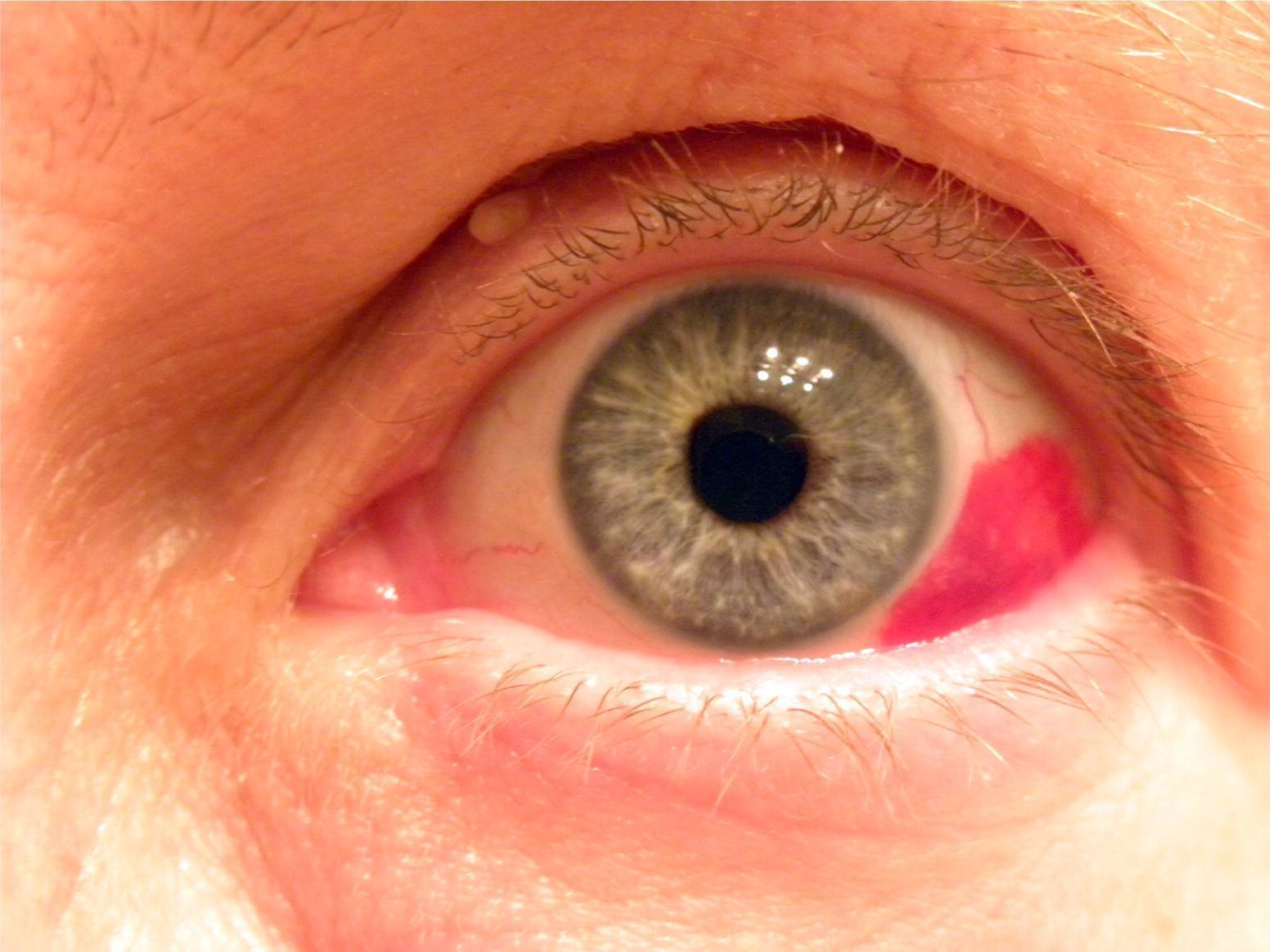 Что делать, если у ребенка лопнул сосуд в глазу, в чем причины повреждения капилляров?