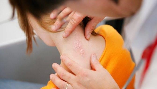 Псориаз у детей: фото начальной стадии болезни, причины и лечение