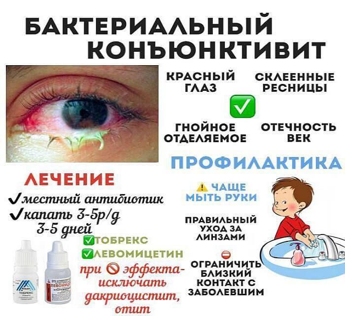 Эффективные способы лечения вирусного конъюнктивита у детей