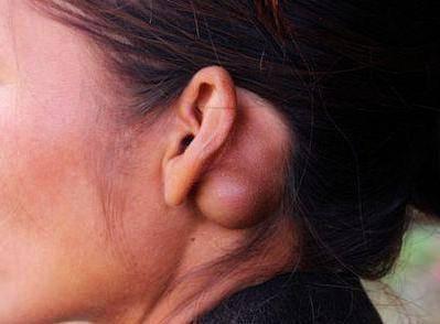 Лимфоузел на шее с правой стороны воспалился: причины, лечение