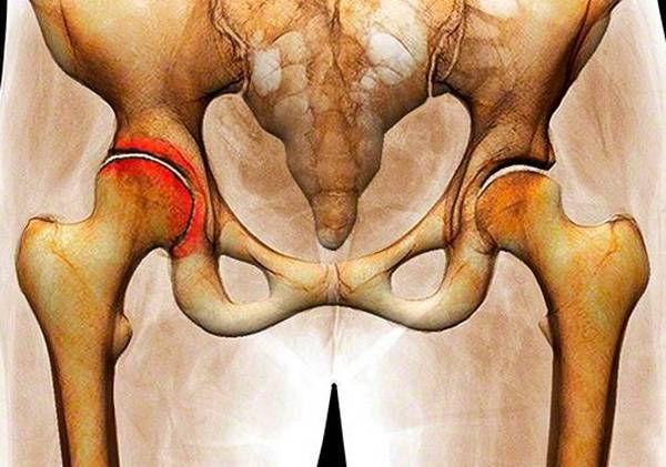 Артрит тазобедренного сустава: симптомы и лечение. лекарства и операция