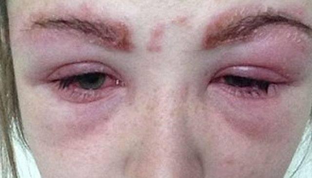 Что делать, если у ребенка отекают глаза ‒ методы диагностики и лечения