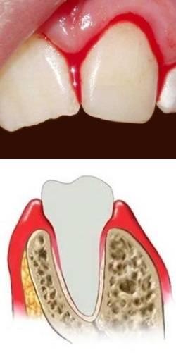 Кровоточивость десен при беременности чем лечить — зубы