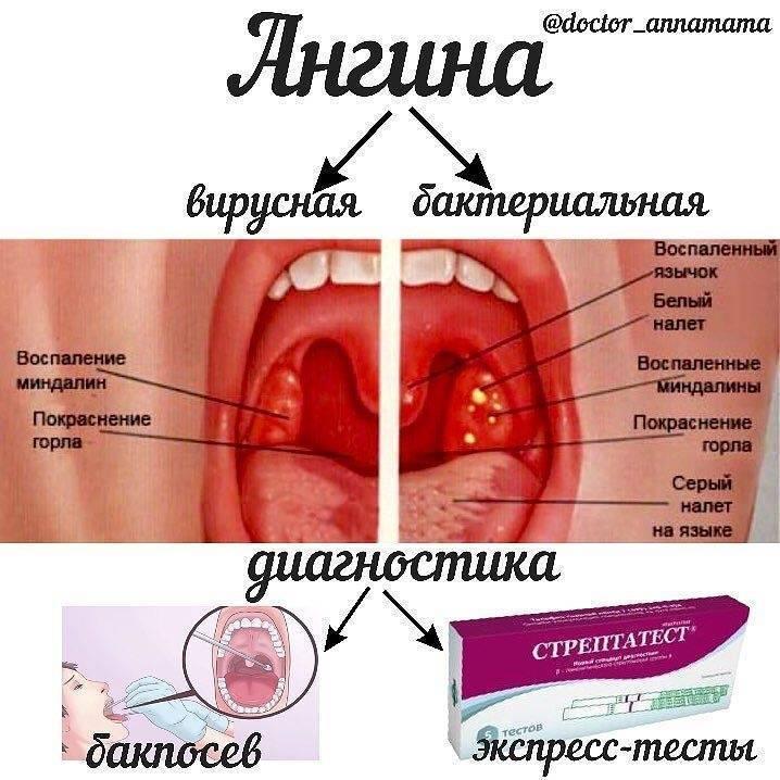 Вирусный герпес ребенка на горле