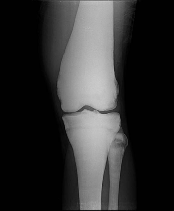 Остеопетроз что это за болезнь