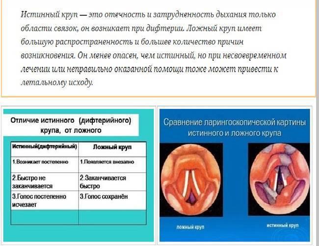 Ложный круп (острый круп) у детей: симптомы, причины, лечение и первая неотложная помощь