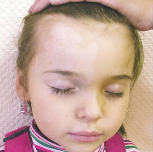 Комаровский о причинах и лечении витилиго у детей и фото начальной стадии