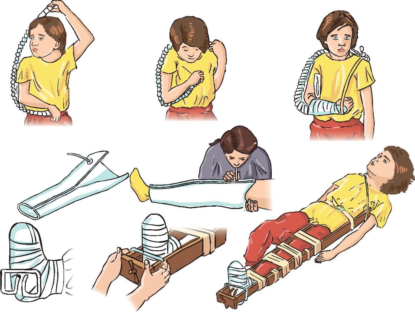 Перелом руки у ребенка: как определить, симптомы и лечение