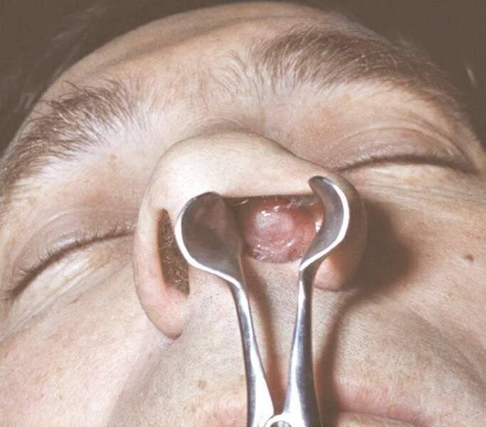 Полипы в носу: симптомы, лечение и причины образования