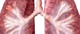 Энтероколит у грудничка симптомы и лечение