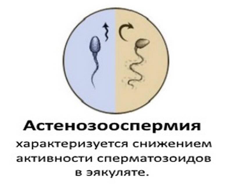 Расшифровка анализа спермограммы. показатели нормы